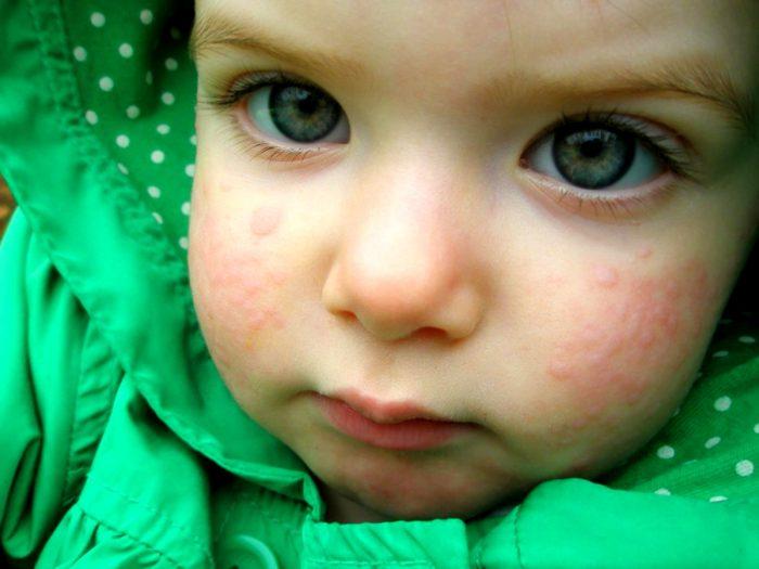 аллергия у ребенка