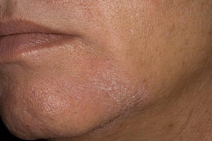 обильное шелушение кожи
