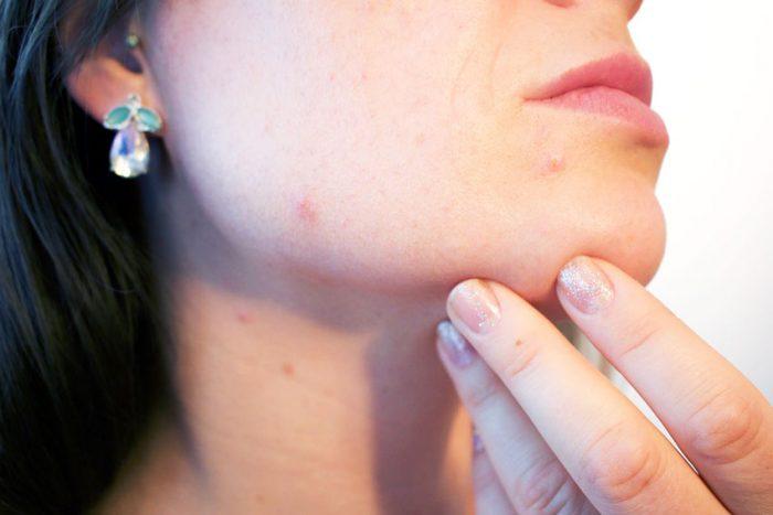 симптомы фурункулеза шеи