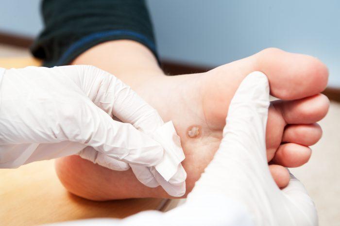 папилломы на ноге