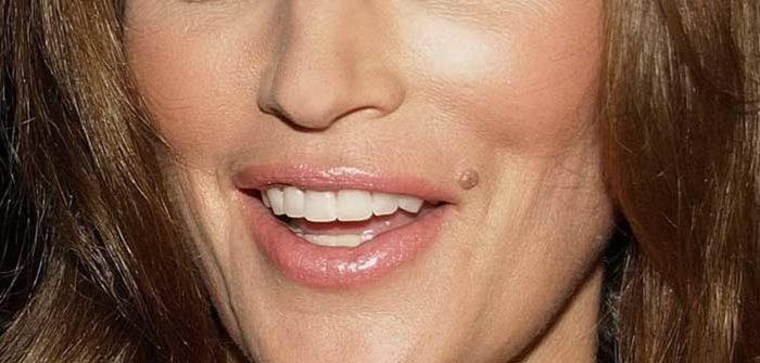 плоская бородавка на губе