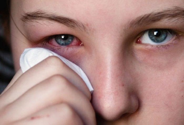 виды грибковых болезней глаз