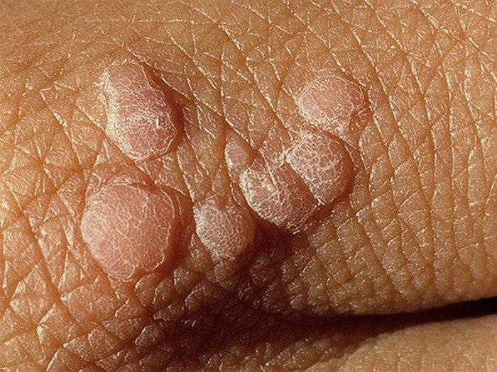 лечение вируса папилломы
