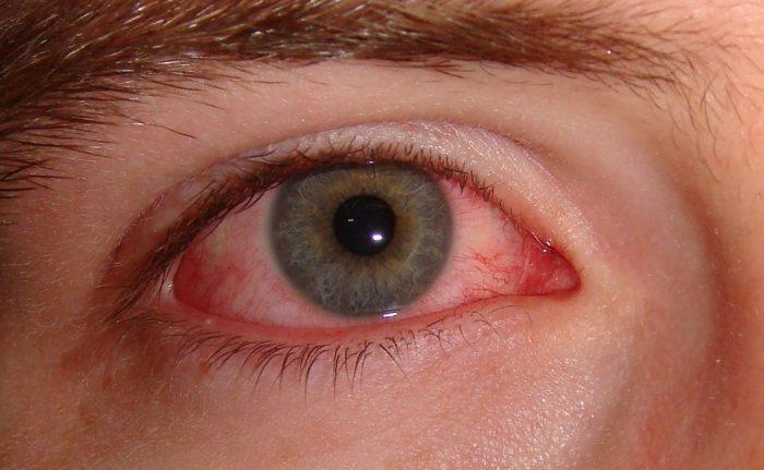 конъюнктивит аллергической природы