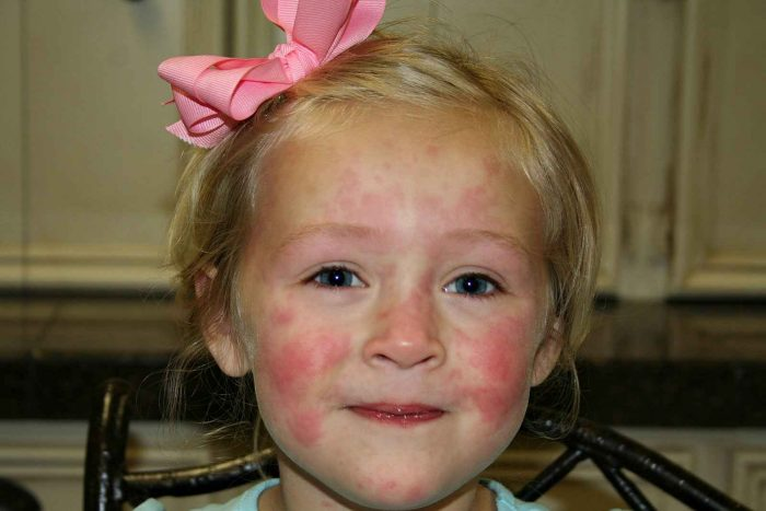 аллергические реакции на коже при крапивнице