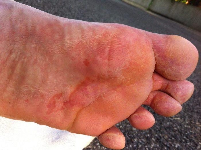 дерматологические заболевания стоп