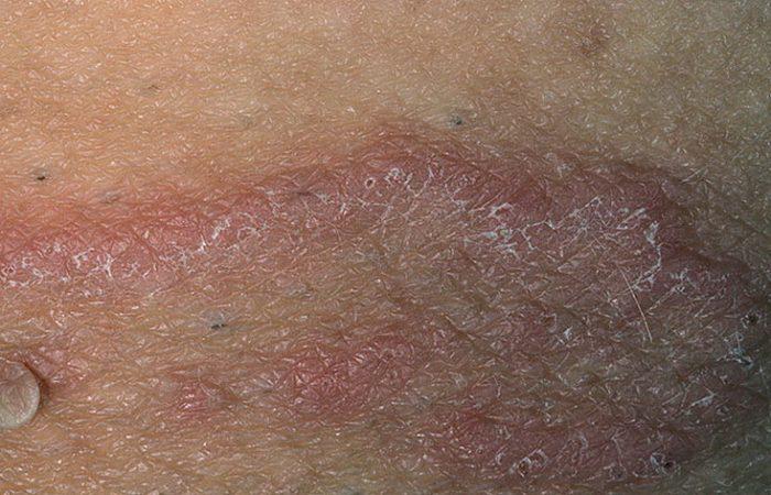 признаки и симптомы микоза