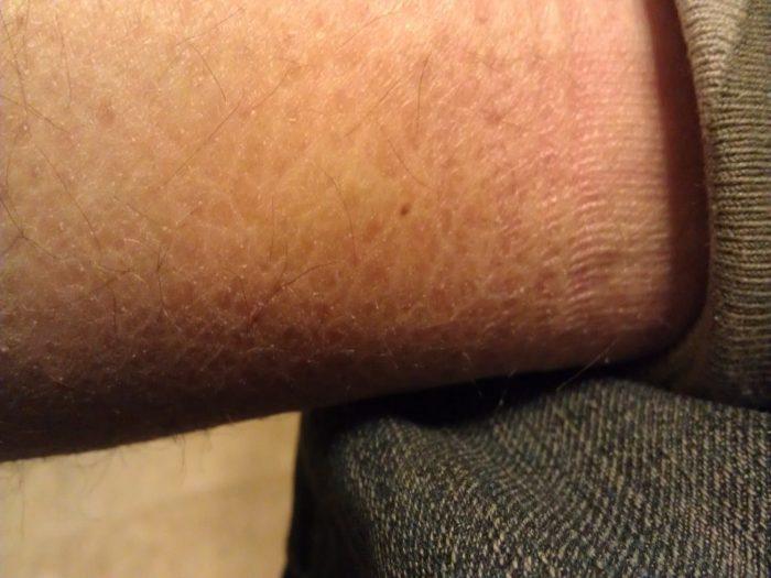 формирование на коже бляшек
