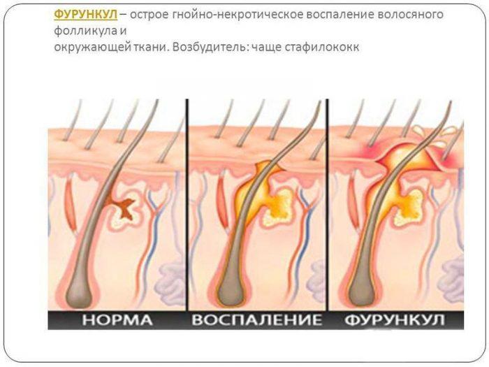 механизм формирования фурункула