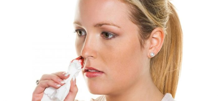 носовые кровотечения