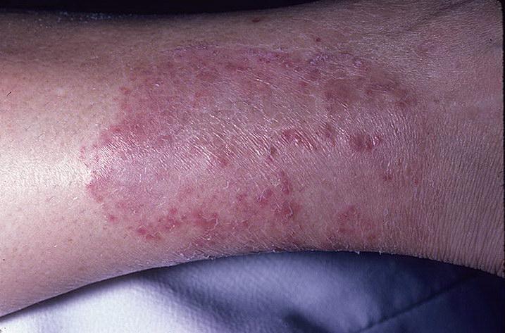 Виды грибков на коже и методы их лечения