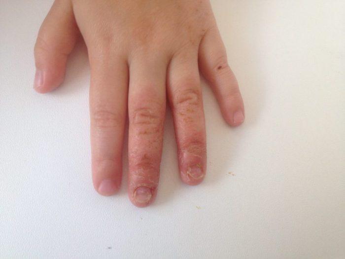 заболевания кожи у детей
