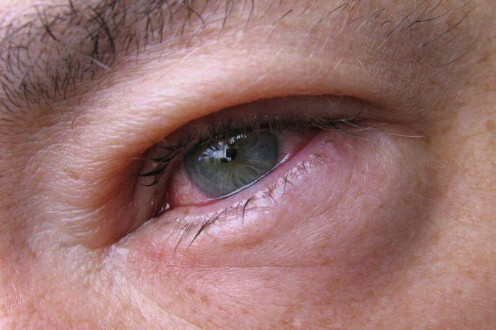 отеки вокруг глаз