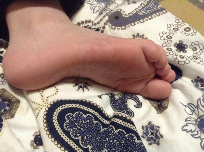 поражаются стопы ног