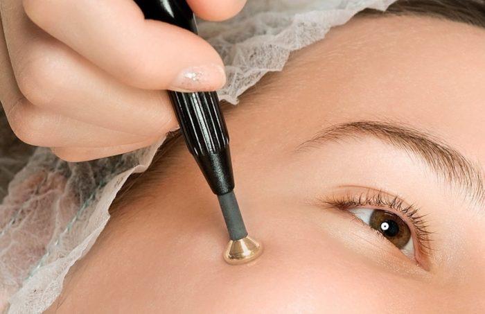 Как применяется электрокоагуляция при лечении бородавок и папиллом