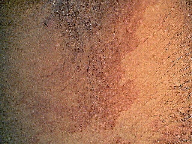 эритразма на коже