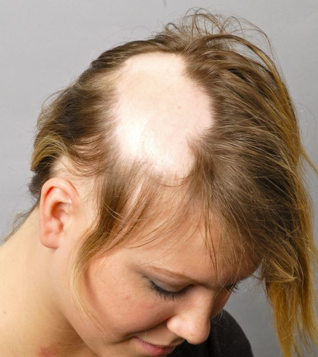 сбривание волос вокруг очага заболевания