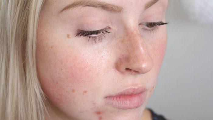 шелушение кожи на лице у женщин