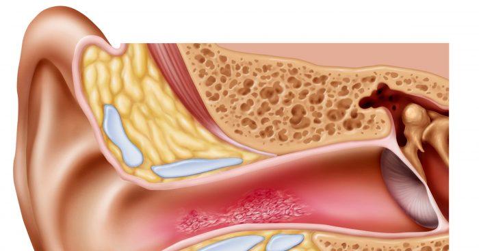 классификация ушного грибка