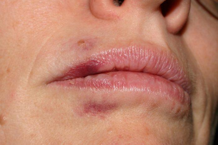грибок поражает носоглотку и полость рта
