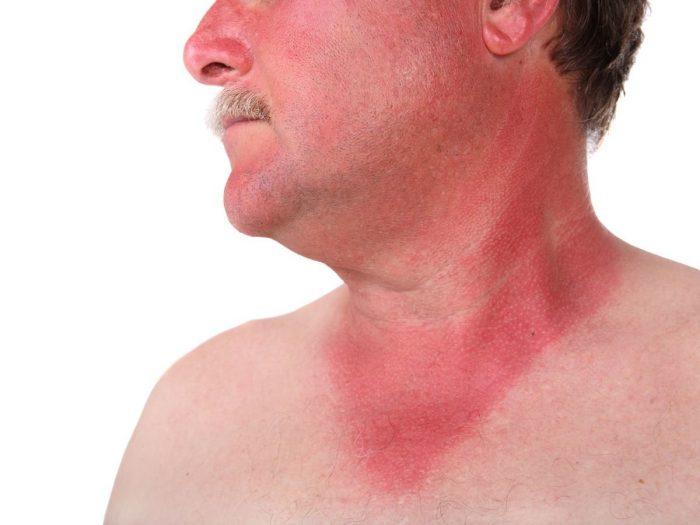 симптоматика солнечного ожога