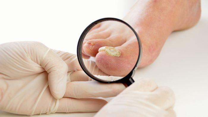 лечение грибковых инфекций