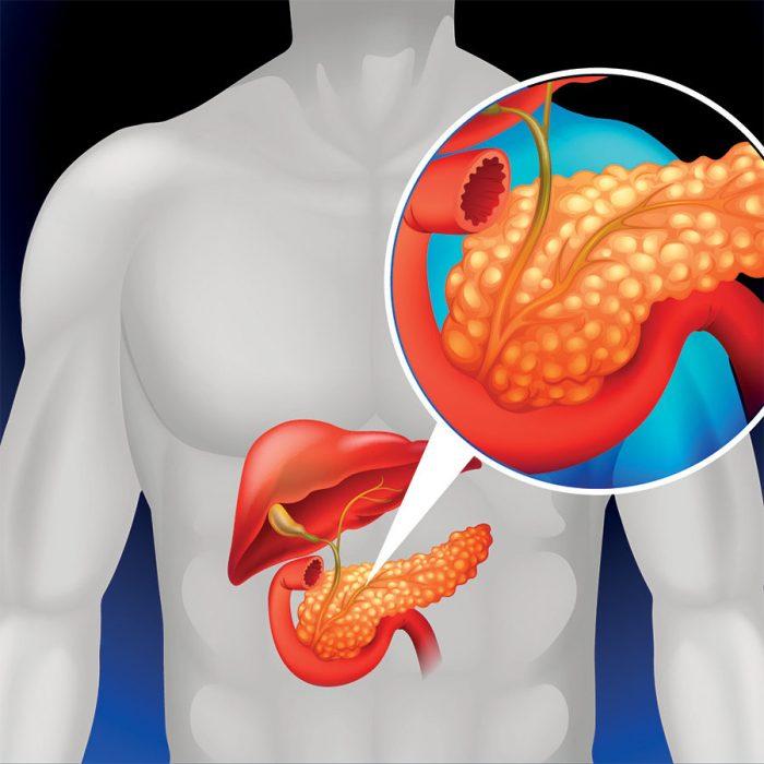 панкреатит в острой и хронической стадии