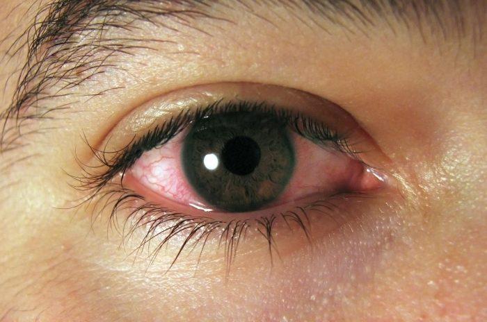 раздражение слизистой глаз